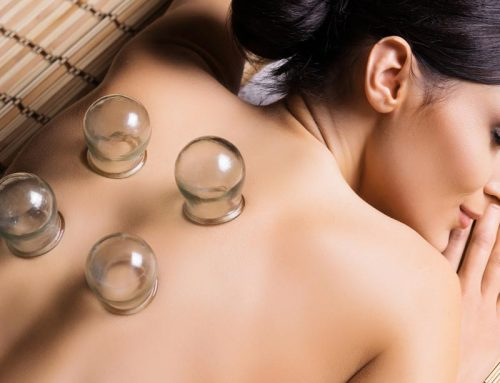 What Is Cupping Therapy and How Does it Work?