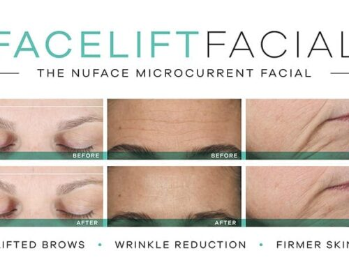 The Nuface Facelift is here!